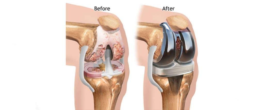 πριν και μετά την αρθροπλαστική γόνατος
