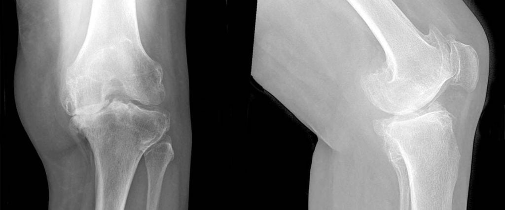 αρθρίτιδα γόνατος ακτινογραφία