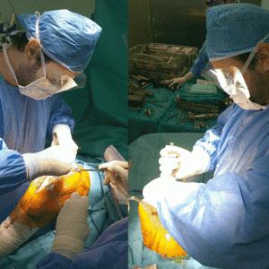 ορθοπαιδικός_χειρουργός_ισχίου_γόνατος