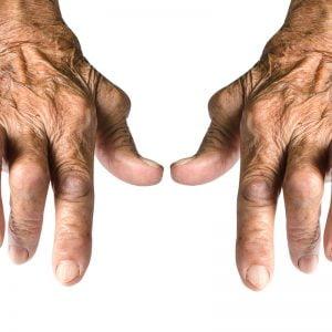 Ρευματοειδής Αρθρίτιδα: Υποστήριξη - Αντιμετώπιση