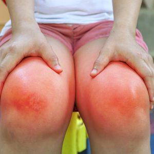 Ρευματοειδής Αρθρίτιδα: Συμπτώματα